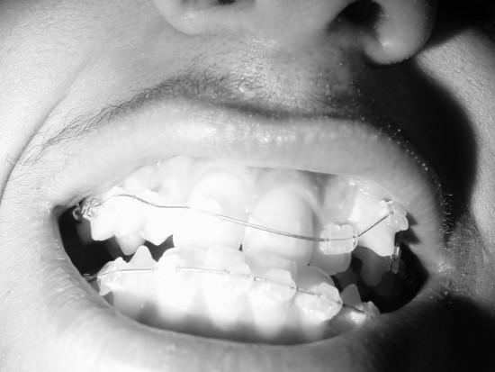 Czy ortodonta odpowie za założenie aparatu na 11 lat? (źródło: sxc.hu)