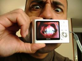 Bezobjawowe zęby mądrości. Co z nimi robić?