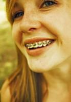 Estetyka główną motywacja do leczenia ortodontycznego