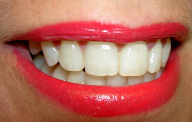 Zęby trwałe jak stal (foto: sxc.hu)