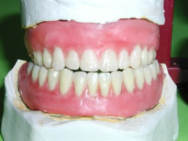 Metoda opakowywania zębów hydroksyapatytem