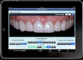 Zęby cyzelowane