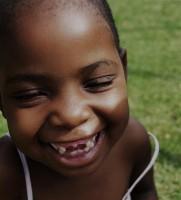 Dentysta usunął córce przednie zęby mleczne dla komórek macierzystych