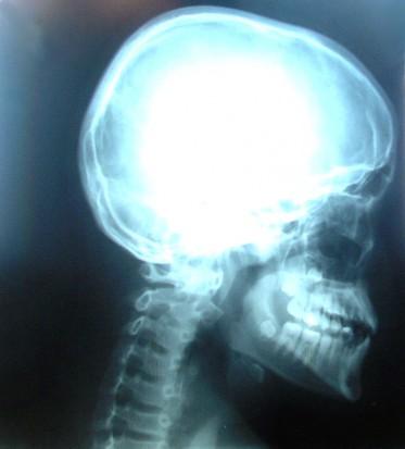 Dentysta z rentgenem w ręku (foto: sxc;hu)