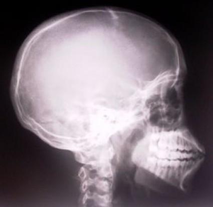 Szkodliwość RTG zębów  kolejne badania, które wywołają falę protestów? (fot. sxc.hu)