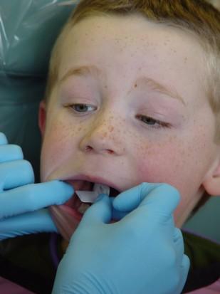 Lębork: chcą bezpłatnego leczenia stomatologicznego dla 12-latków (fot. sxc.hu)