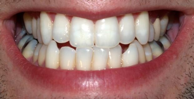 Nakładki prostują zęby (źródło: Wikipedia)