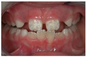 Celiakia z punktu widzenia stomatologa