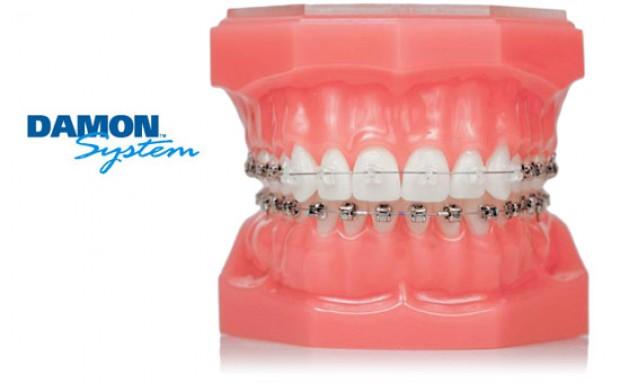Ortodoncja: teraz Damon jest Smile (fot. Orco)