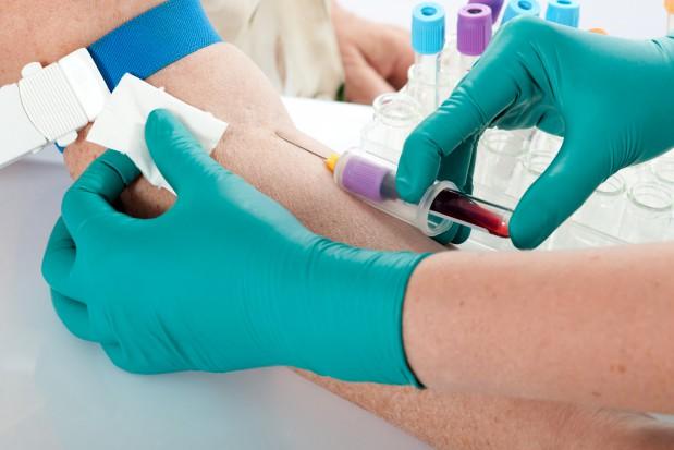 Testy na HIV w gabinecie stomatologa. USA daje przykład, co z Polską? (Fot. Fotolia/PTWP)