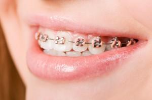 Ortodoncja: co dla dzieci z wrodzonymi wadami części twarzowej czaszki