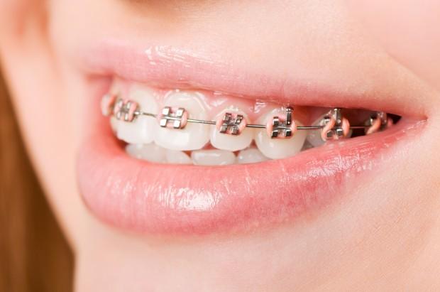 Ortodoncja: co nowego w świadczeniach gwarantowanych dla dzieci z wrodzonymi wadami części twarzowej czaszki (fot. Fotolia/PTWP)