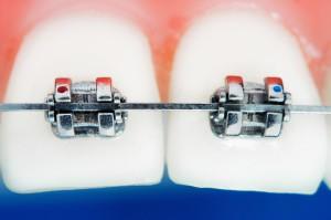Elektroniczny ząb wykryje złe nawyki