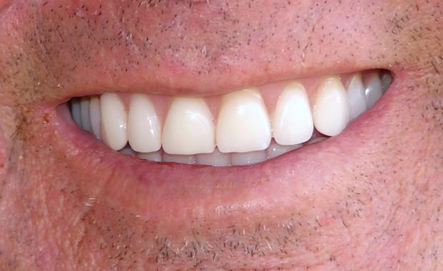 Akrylowe zęby z importu a stawka vat