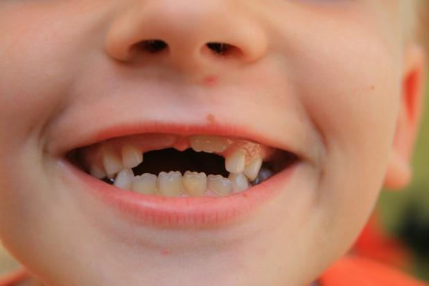 Co dentyście ze Światowego Dnia Uśmiechu?