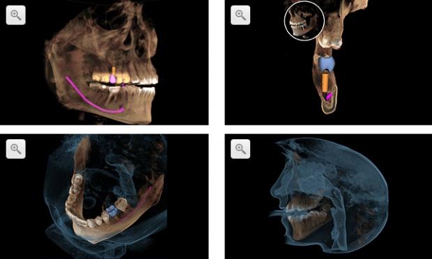 """Sirona Galileos 3D: twarzoczaszka """"od podszewki"""