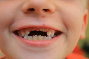 Lekarze dentyści odpowiedzą za niezrealizowanie niemożliwych do zrealizowania programów?