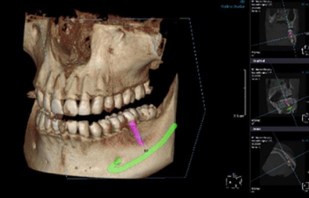 Bezpieczna diagnostyka z Esdent Dental Equipment
