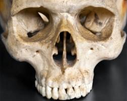 Pompeje na uzębieniu ludzkiej czaszki