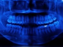 Szkolenia dentystów z ochrony radiologicznej pacjenta