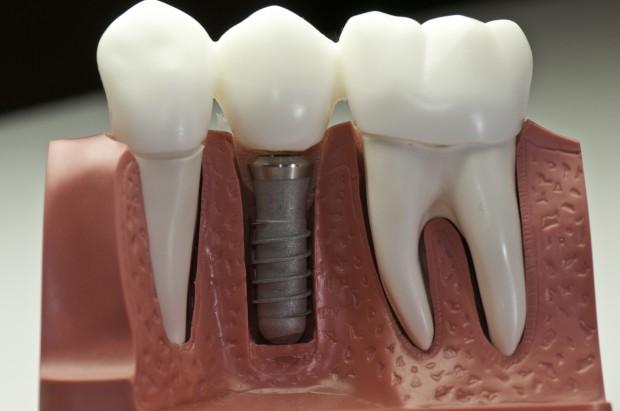 Za cztery implanty i protezę kombatant nie zapłaci nic