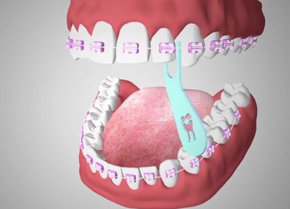 Nitkowanie z aparatem ortodontycznym w tle