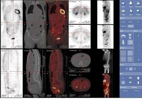 Problemy z obrazowaniem PET/MRI. Będzie przełom.