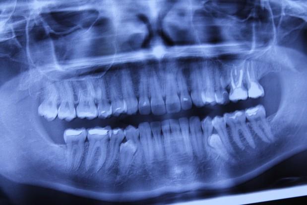 58 proc. Polaków badanie rtg kojarzy z problemami z zębami