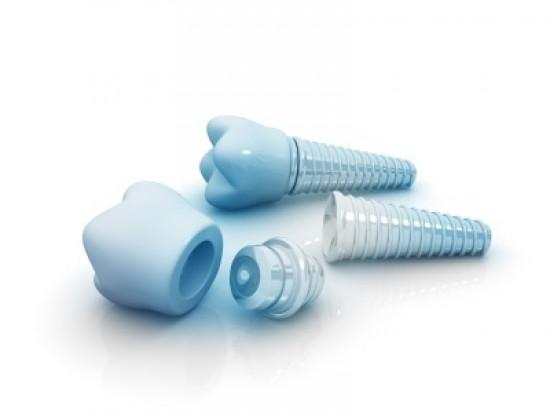 Leczenie implantoprotetyczne, nawet to niezbędne, wyłącznie prywatnie