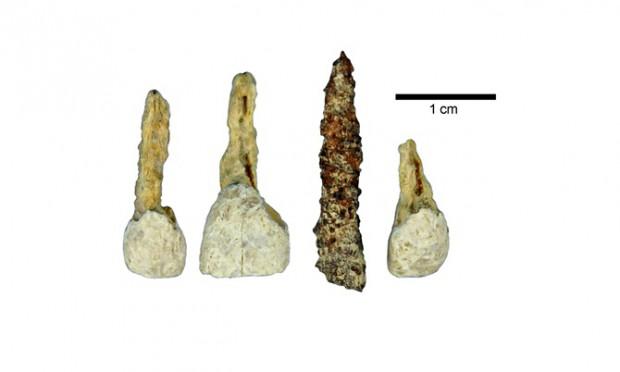 Czy to najstarszy implant zębowy w Europie?