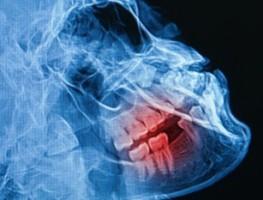 Co znaczy, że dentysta zapewnia aparat RTG