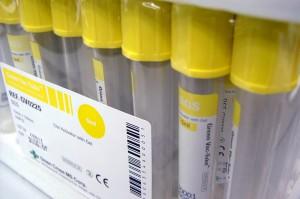 Podatek w przypadku materiału przekazywanego na zewnątrz do badania laboratoryjnego