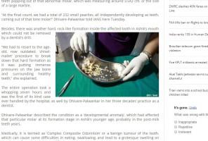 Indie: chirurdzy usunęli 17-latkowi z odontomą 232 zawiązków zębów