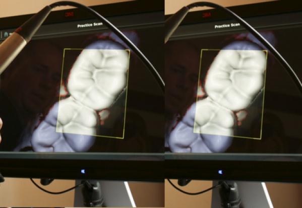 Kolejna odsłona kamer wewnątrzustnych