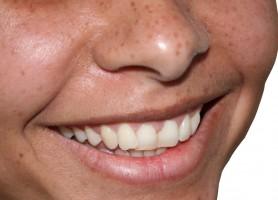 UE: dentyści raportują o niepożądanych efektach wybielania zębów