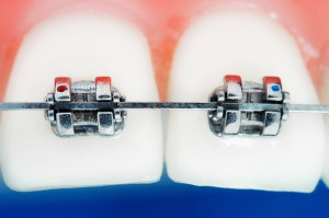 Zamki ortodontyczne wśród produktów innowacyjnych