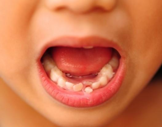 Zęby w poznawaniu autyzmu