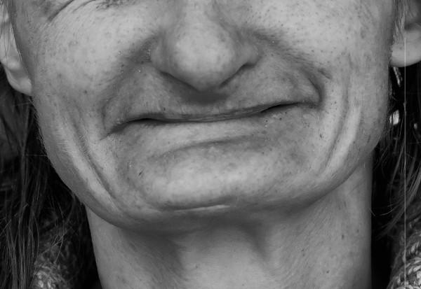 Happy end po pięciu latach horroru od wizyty u dentysty