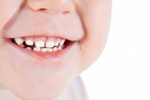 Oswajanie dzieci z dentystą w toruńskim szpitalu
