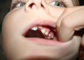 Jak nie należy organizować konkursu na usługi stomatologiczne