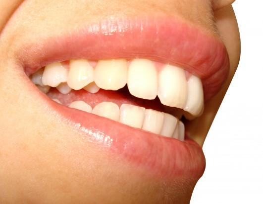 Wbielanie zębów lampą: kamyczek do ogródka