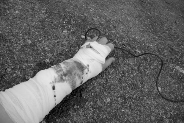Ile kosztuje złamana ręka dentysty?