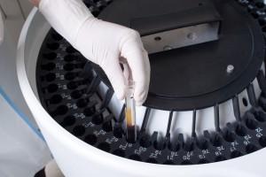 EMA o ryzyku martwicy żuchwy po stosowaniu kwasu zaledronowego
