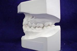 Technik dentystyczny w zasadzie nie pracuje w szczególnych warunkach