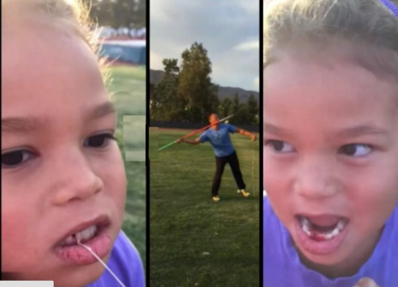 Mistrz olimpijski wyrwał ząb córce oszczepem