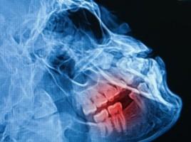 Bruksizm nie jest problemem stomatologicznym?