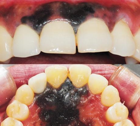 Czerniak złośliwy w jamie ustnej