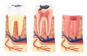 Nadzieja dla osób z nadwrażliwymi zębami