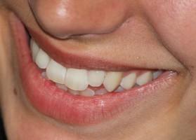 Mutanaza blokuje powstawanie biofilmów jamy ustnej