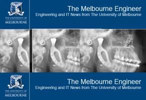 Staw skroniowo – żuchwowy z drukarki 3D